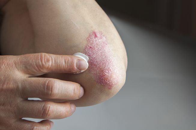 home remedies psoriasis